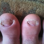 What happens when you lose two big toenails